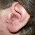 Ear Problems and Fibromyalgia: Is There Any Link?