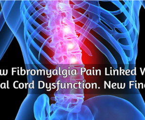 How Fibromyalgia Pain Linked With Spinal Cord Dysfunction. New Findings