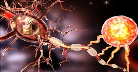 How nerve damage plays a role in fibromyalgia. Recent study