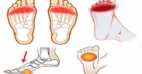 FIBROMYALGIA AND THE PAIN OF FEET
