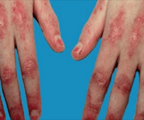 How does the hand pain and fibromyalgia feel?